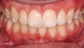 Начальная форма развития флюороза зубов