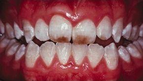 Меловидно-крапчатая форма флюороза зубов