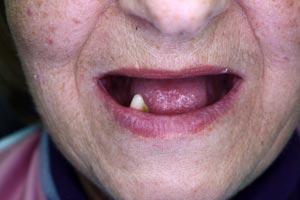 Полная адентия - беззубая верхняя челюсть, на нижней челюсти наличие одного зуба