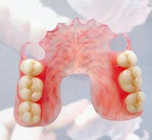 Съёмные нейлоновые гибкие зубные протезы Valplast (Валпласт) (на базе нейлона фирмы Valplast - США)