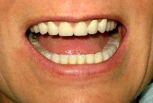 Патологическая стираемость эмали. Протезирование верхней челюсти металлокерамическим мостовидным протезом. Протезирование жевательной группы односторонним бюгельным протезом.
