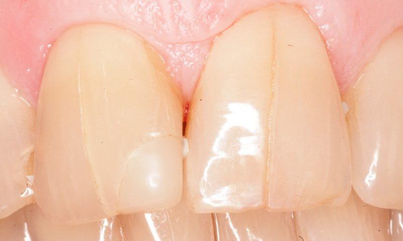 Трещины и расколы коронковой и корневой части зубов, причины возникновения, прогноз лечения.