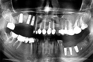Наращивания костной ткани при помощи пересадки костных блоков. Результаты наращивания костной ткани.