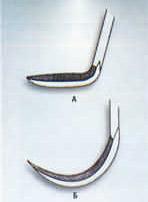 Мануальные инструменты для удаления зубных отложений