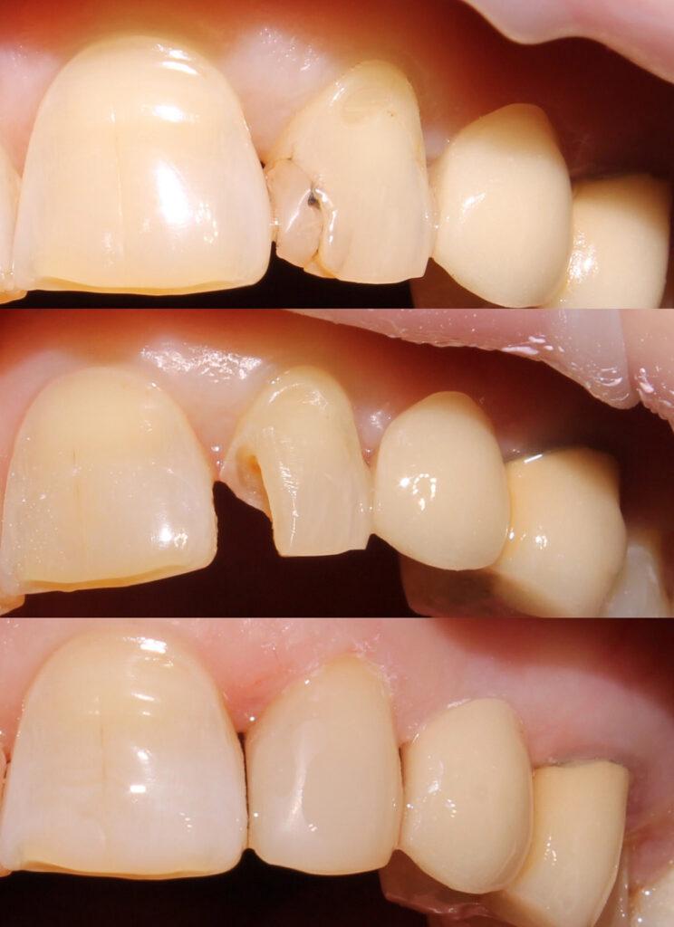 Косметическая реставрация зубов после лечения кариеса
