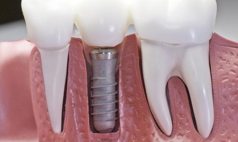 Насколько безопасны зубные имплантаты?