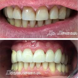Как улучшить эстетику фронтальной группы зубов с помощью виниров?