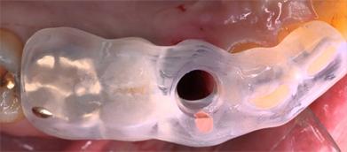 Что такое трансгингивальная имплантация, в чем ее преимущества и недостатки?