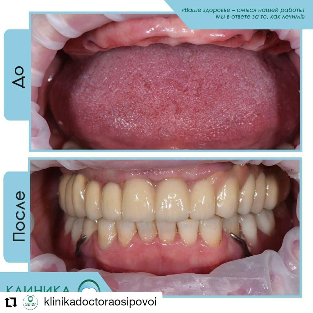 Несъемное протезирование при полном отсутствии зубов