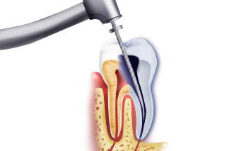 Каковы причины неэффективности при лечении корневых каналов?