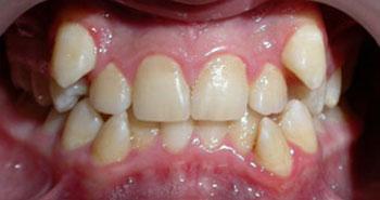 Аномалии зубов, деформации зубного ряда, нарушения прикуса