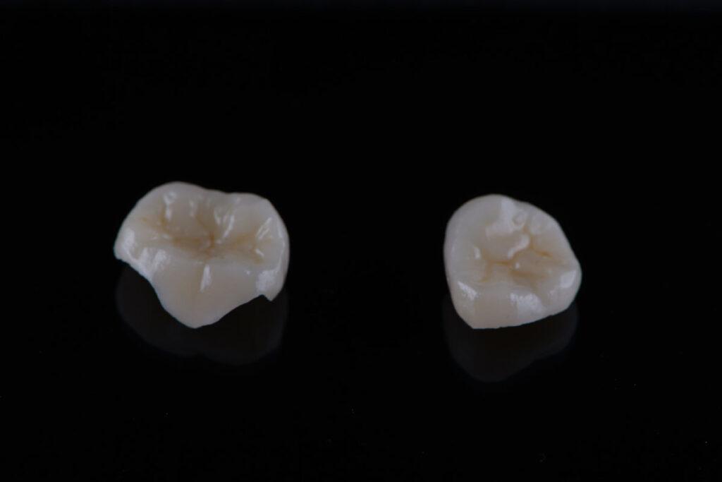 Что такое микропротезирование или керамические вкладки?