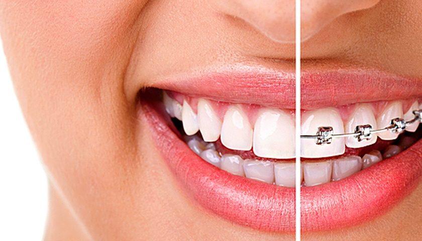 Что такое ортодонтия?
