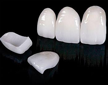 Керамические виниры - преимущества виниров перед другими методам косметической стоматологии.