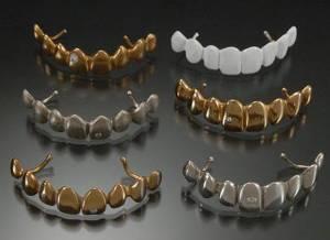 Что такое основной металлический сплав? Можно ли его использовать при изготовлении металлокерамической коронки?