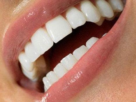 Как проводится косметическая реставрация скола фронтальных зубов?