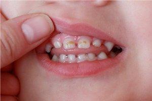 Кариес молочных зубов - предотвращение и лечение