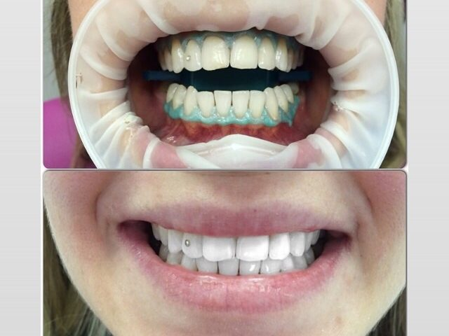 Что делать, если после отпуска зубы потемнели?