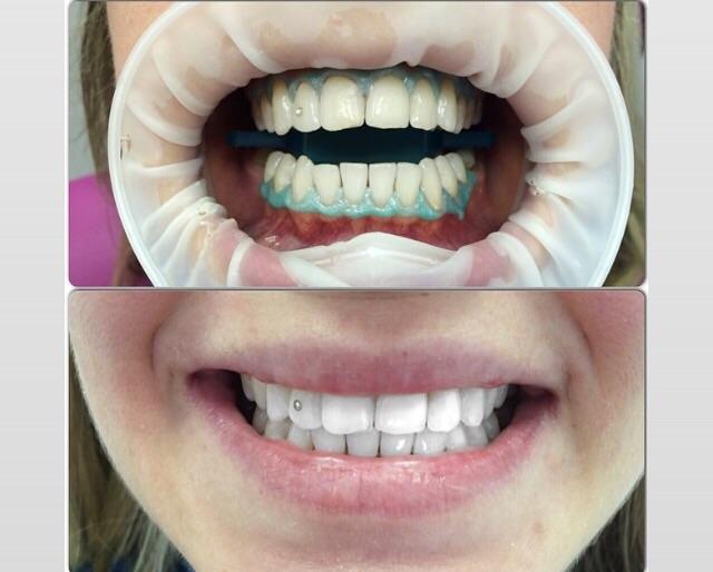 Болят зубы после отбеливания что делать