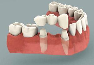 Является ли несъемный консольный мостовидный зубной протез актуальным методом лечения?