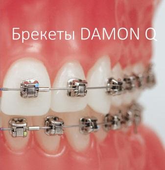 Пример ортодонтического лечения с использованием брекетов Damon Q