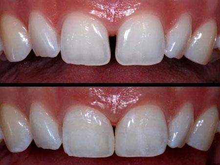 Почему важно ортодонтическое лечение?