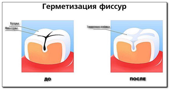 Герметики для фиссур и слепых ямок зубов