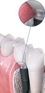 Особенности гигиенического ухода за имплантатами и зубными протезами на имплантатах