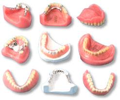 Как проблемы дизайна металлического зубного протеза влияют на функцию металлокерамической коронки?