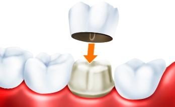 Может ли использоваться трехчетвертная коронка в качестве опорного зуба для несъемного мостовидного зубного протеза?