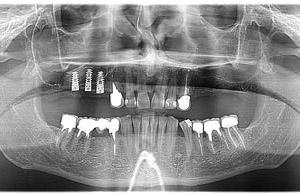 Что такое процедура синус - лифтинга? Результаты проведения синус-лифтинга.