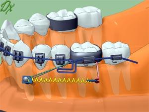 Как происходит установка ортодонтических микроимплантов?