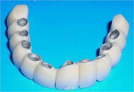 Мост на имплантатах при полном отсутствии зубов на нижней челюсти