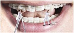 Ортодонтия – лечение аномалий зубочелюстной системы