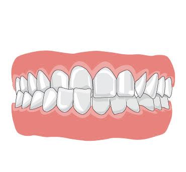 Какие бывают аномалии прикуса, когда следует начать ортодонтическое лечение у детей?