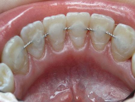 Когда должен рассматриваться вопрос о наложении зубной шины, какие типы шин используются?