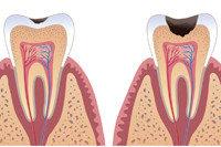 Недостаточная минерализация эмали как фактор, предрасполагающий к развитию кариеса зубов