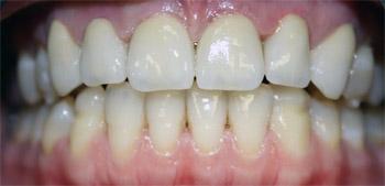 Мне полгода назад установили металлокерамические коронки на передних зубах, сейчас у меня появилась темная каемка у десны. Как решить эту проблему, чтобы было эстетически красиво?
