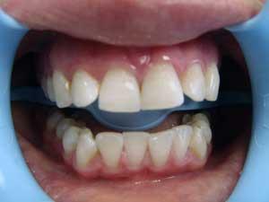 Что такое отбеливание зубов с применением системы Zoom3, каковы его результаты?