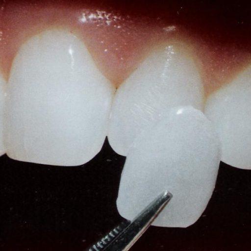 Какие методы осветления жизнеспособных зубов используются наиболее часто?