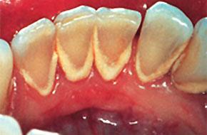 Что такое зубной камень, почему зубной камень часто имеет темный цвет?