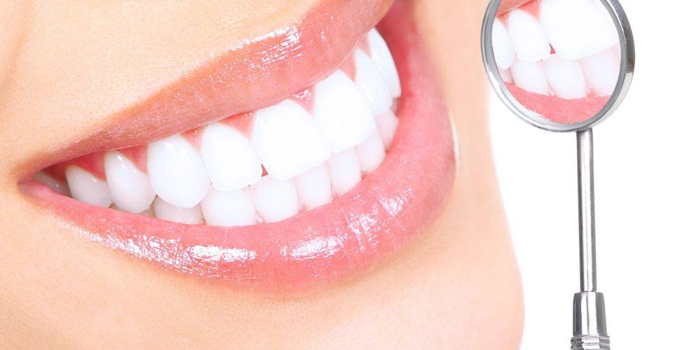 зубные протеза на имплантатах