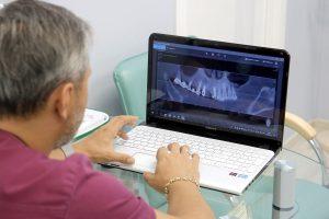 Стоматологическая имплантация в Коньково
