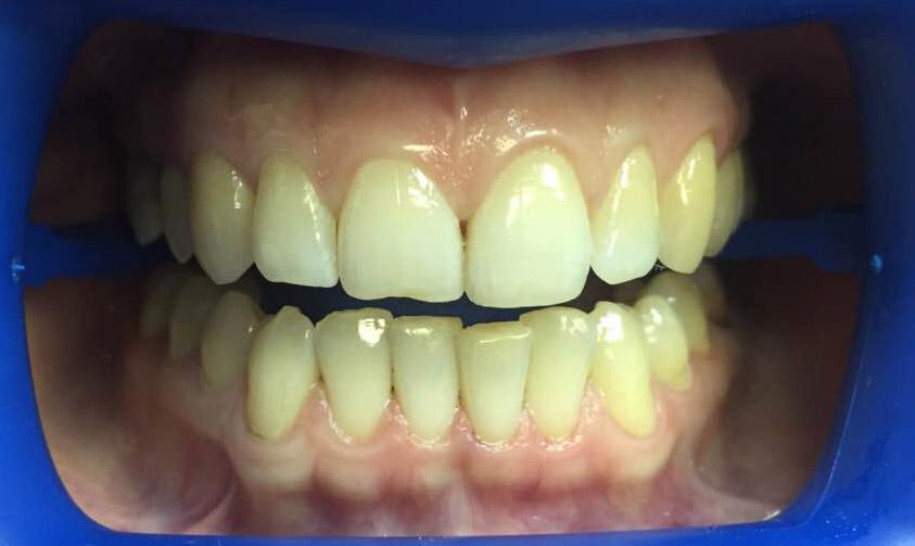 результат отбеливания зубов zoom