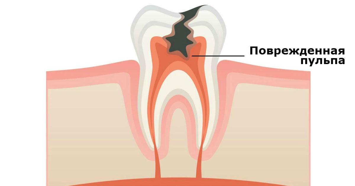 Средняя стоимость лечения зубов с пульпитом