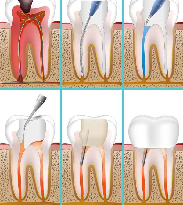 Средняя стоимость лечения зубов с периодонтитом