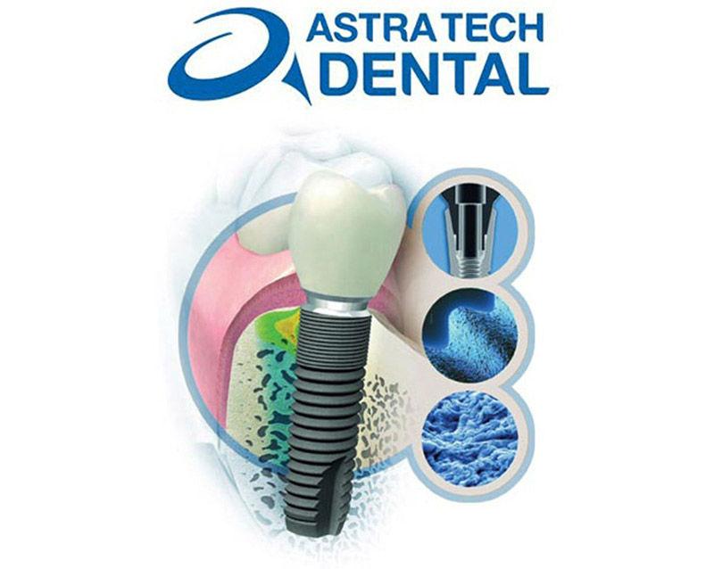 Приглашаем в клинику на имплантацию и протезирование премиум-класса с использованием шведских имплантатов Астра Тек (Astra Tech)