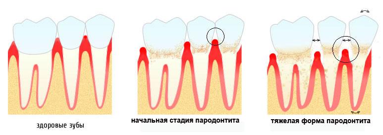При пародонтите средней и тяжелой тяжести подвижность зубов