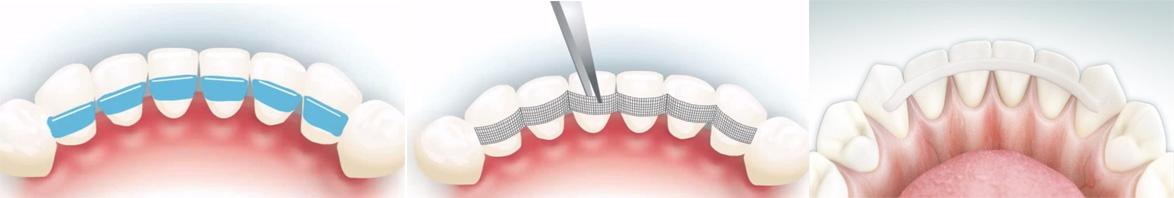 Проведение процедуры шинирования зубов