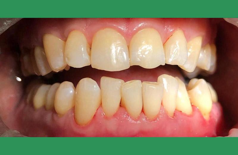 профессиональная чистка зубов - после
